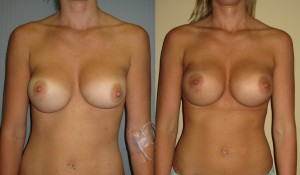 bottoming out breast implants