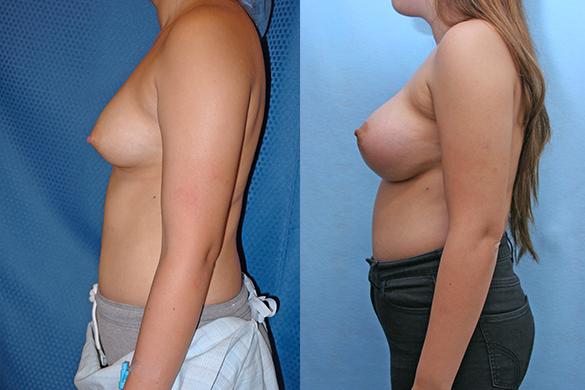 Breast Augmentation Before & After Photos