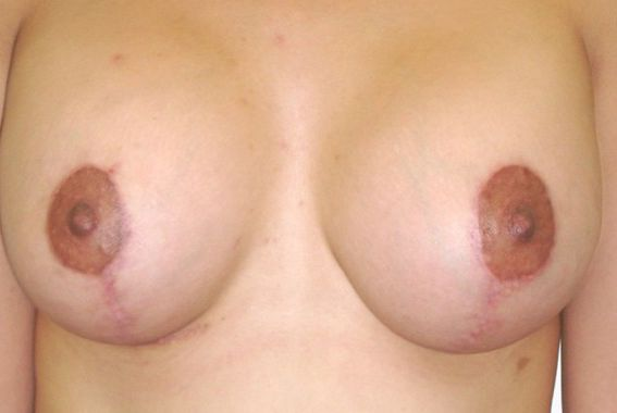 Breast Lift Orange County Before & After Photos