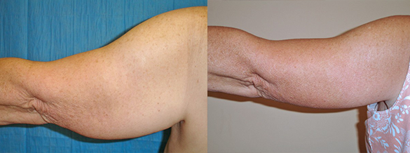 arm lift Before & After Photos