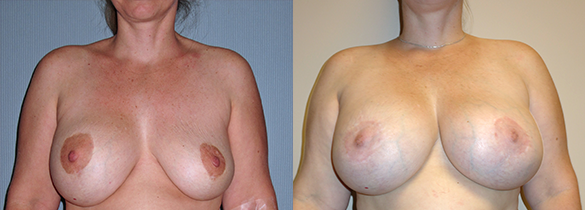 Breast Revision Before & After Photos Front