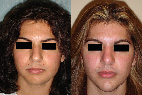 Chin Augmentation Before & After Photos