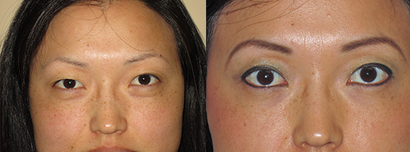 Eyelid Surgery Before & After Photos