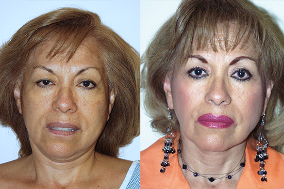 Face and Neck Lift Before & After Photos