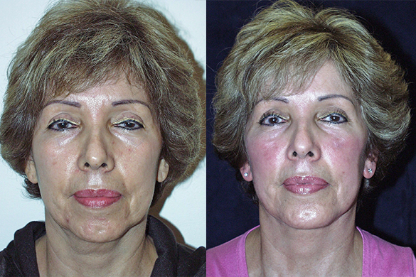 Face and Neck Lift with Chin Augmentation Before & After Photos Front