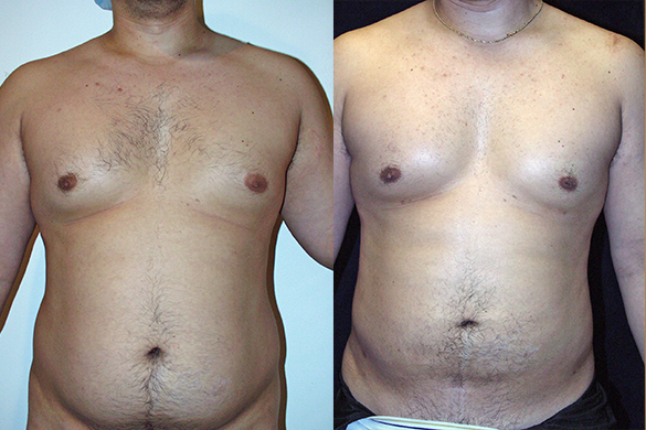 Abdomen, and Chest Liposuction Before & After Photos Front
