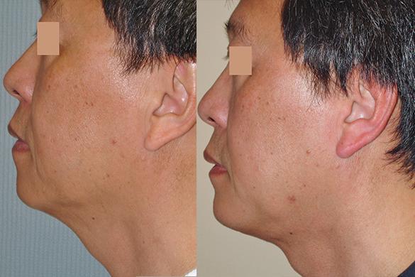 neck liposuction Before & Afte Photos Left