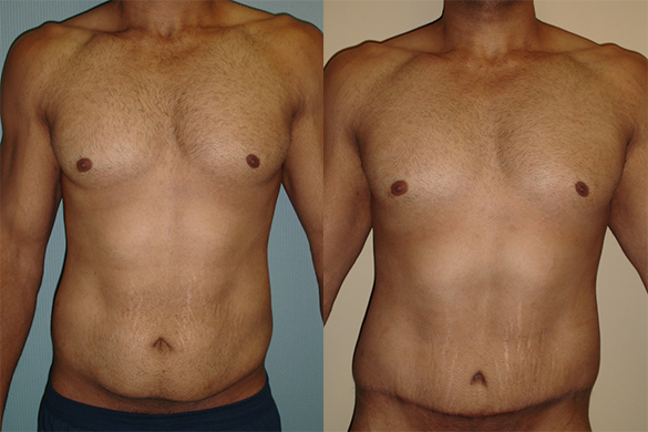 Tummy Tuck Before & After pBefore & After Photos Front