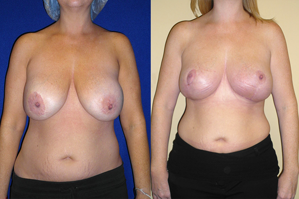 Breast Reduction Before & After Photos Front