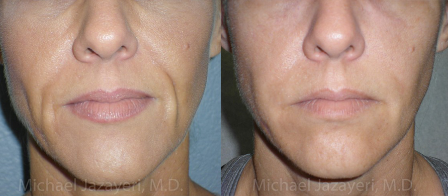 injectable Filler Before & After Photos