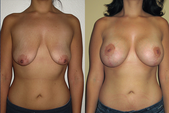 Breast Augmentation With Lift Before & After Photos Front