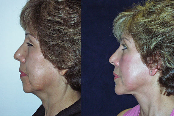 Face and Neck Lift with Chin Augmentation Before & After Photos Left