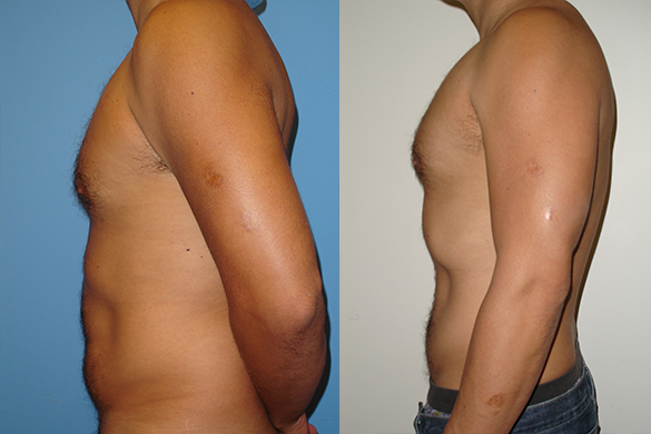 Abdomen Liposuction Before & After Photos Left