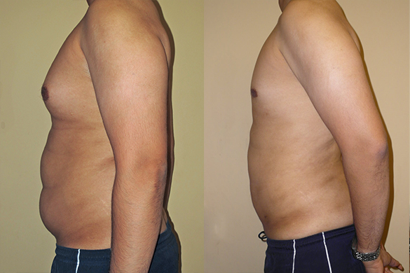 Abdomen, Flanks, and Back liposuction Before & Afte Photos Left