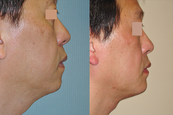 neck liposuction Before & Afte Photos Right