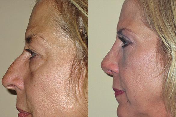 Rhinoplasty & Eyelid Surgery Before & After Photos Left