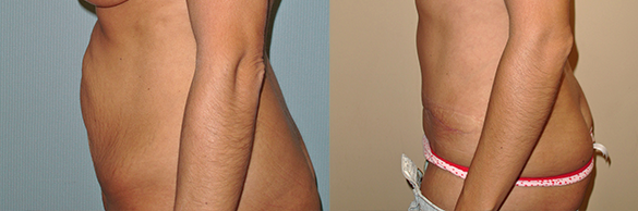Tummy Tuck Before & After Photos
