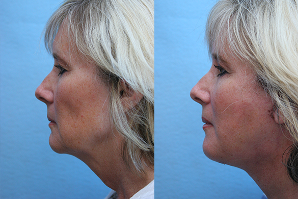 Face and Neck Lift plastic surgery Before & After Photos