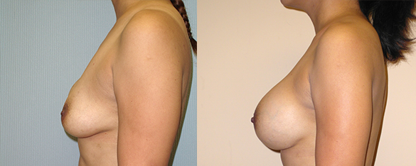 Breast Revision Before & After Photos Left