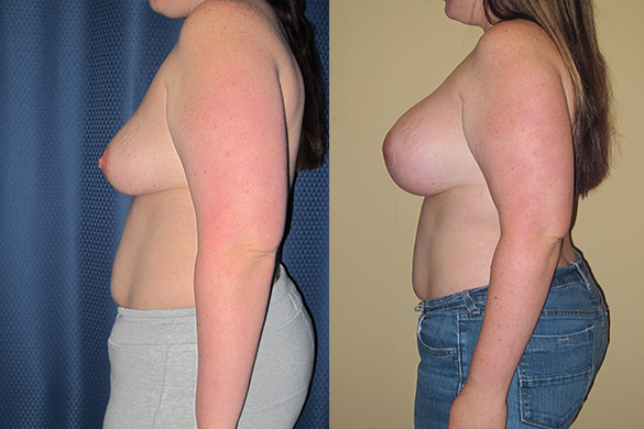 Breast Revision Before & After Photos