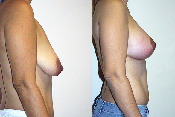 Breast Augmentation With Lift Before & After Photos Right