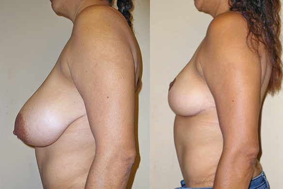 Breast Reduction Before & After Photos Left