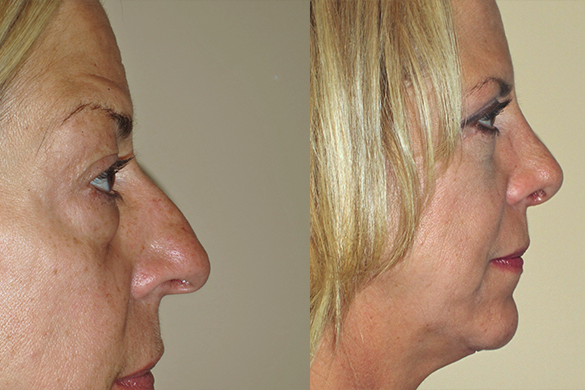 Rhinoplasty & Eyelid Surgery Before & After Photos Right