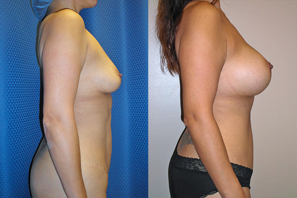 Mommy Makeover with Tummy Tuck Before & After Photos Right