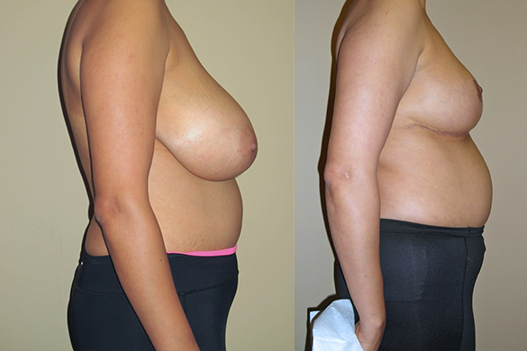 Breast Reduction Before & After Photos