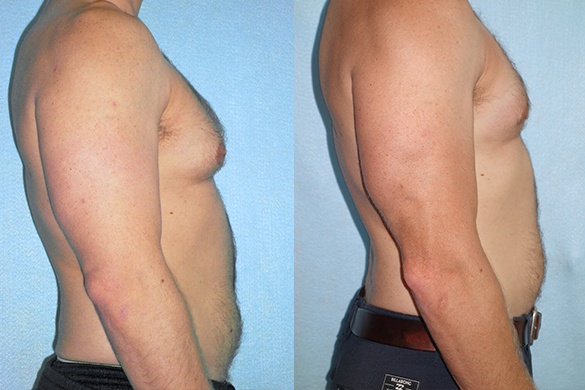 Gynecomastia (Male Breast Reduction) Before & After Photos