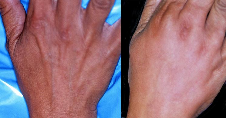 Hand Rejuvenation Before & After Photos