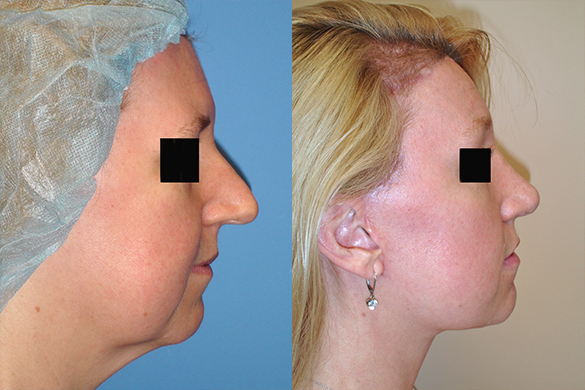 Face and Neck Lift Before & After Photos Right