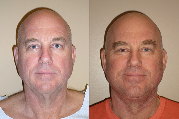 Face and Neck Lift Before & After Photos Front