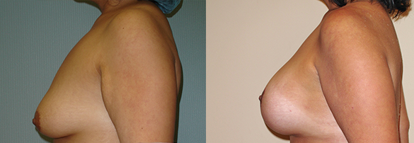 Breast Augmentation With Lift Before & After Photos