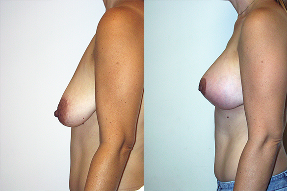 Breast Augmentation With Lift Before & After Photos Left