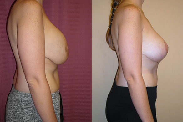 Breast Revision Before & After Photos Right