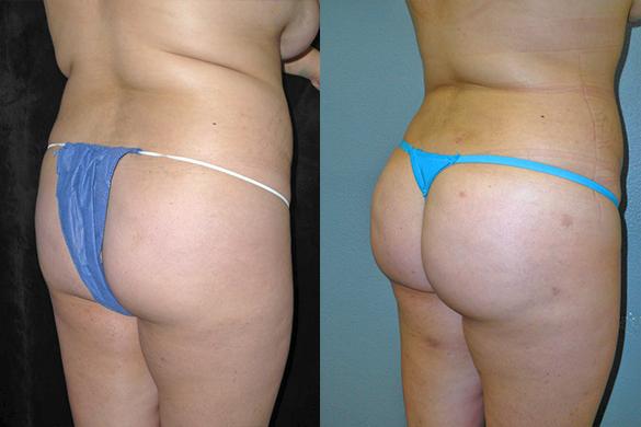 Brazilian Butt Lift Before & After Photos