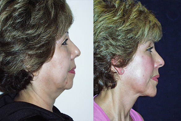 Face and Neck Lift with Chin Augmentation Before & After Photos Right