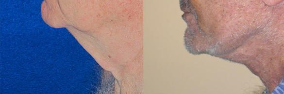 Face and Neck Lift Before & After Photos Left