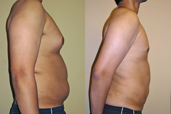 Abdomen, Flanks, and Back liposuction Before & Afte Photos Right
