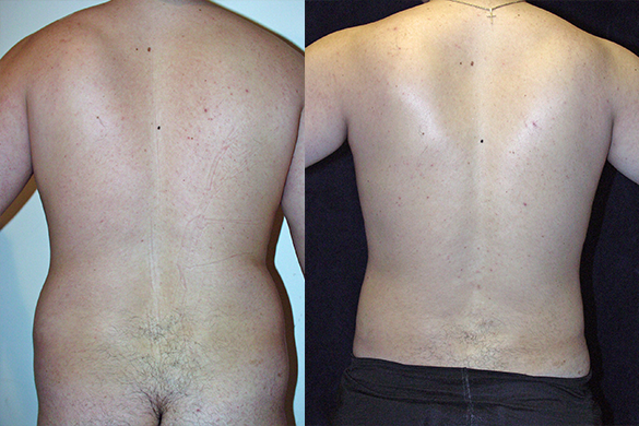 Abdomen, and Chest Liposuction Before & After Photos Back