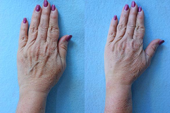 Hand Rejuvenation Before & After Photos Left Side
