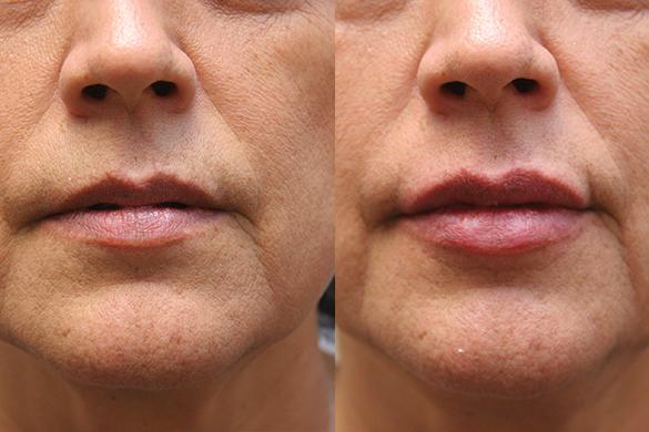 lipfiller Before & After Photos