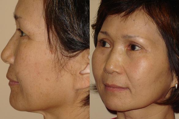Laser Resurfacing Before & After Photos Left Side