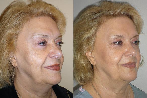 Laser Resurfacing Before & After Photos