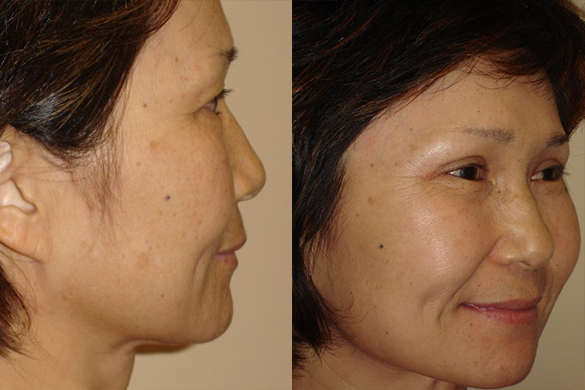 Laser Resurfacing Before & After Photos Right Side