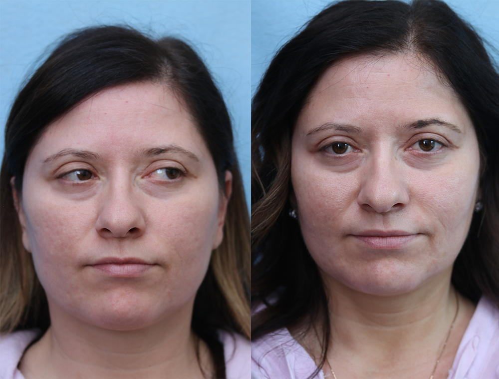 Fat Transfer To Face Before & After Photos