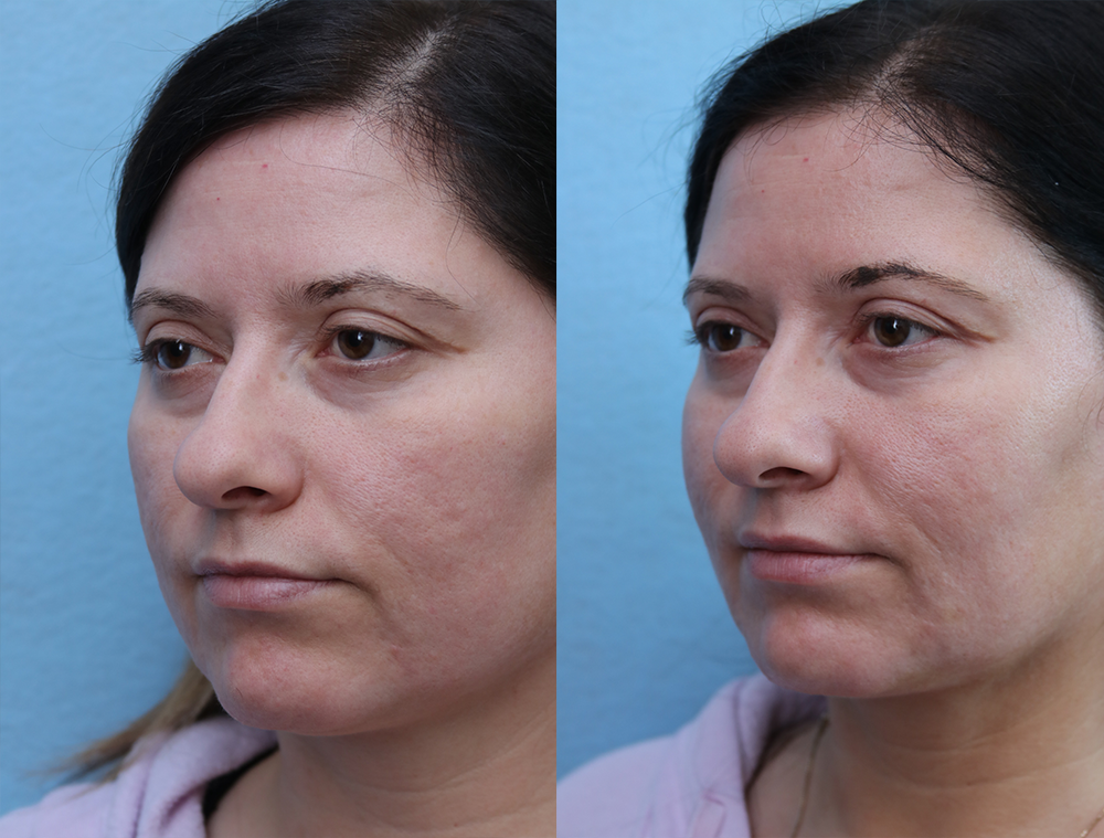 Fat Transfer To Face Before & After Photos Left Side