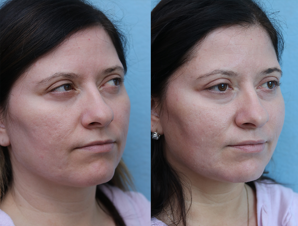 Fat Transfer To Face Before & After Photos Right Side