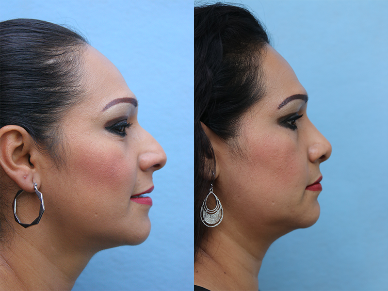 Rhinoplasty Before & After Photos Right Side
